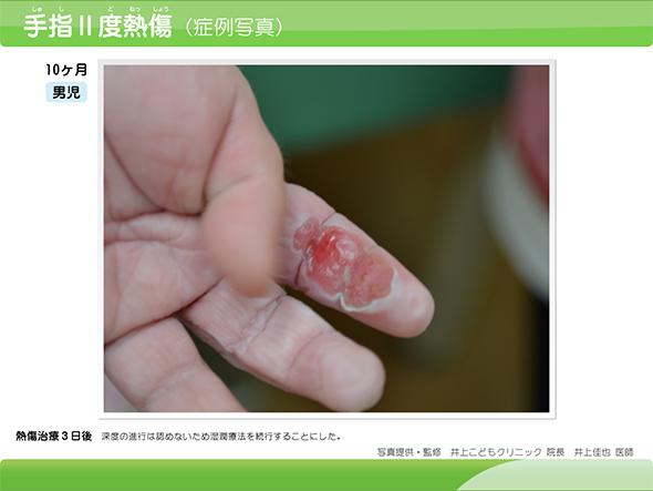 江戸川区平井の平井皮膚科クリニックで、湿疹やニキビ跡の治療