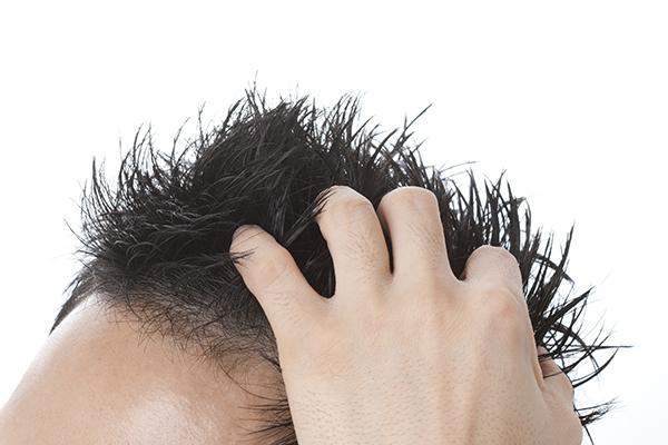 男性型脱毛症(AGA)